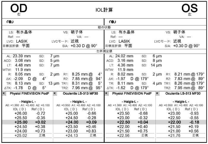 IOL計算のグラフ