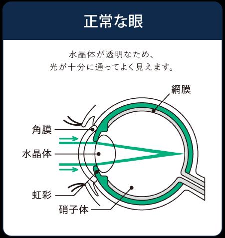 正常な眼のイラスト