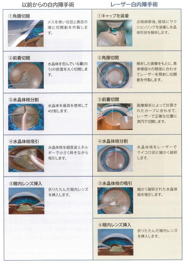 以前からの白内障手術とレーザー白内障手術の比較