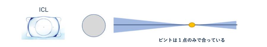 単焦点眼内コンタクトレンズ(ICL)ピントの合い方