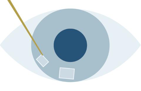 レーザー白内障手術のプロセスのSTEP2創口作成