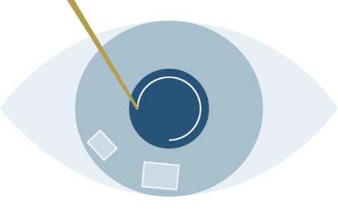 レーザー白内障手術のプロセスのSTEP3水晶体の殻の切開(前嚢切開)