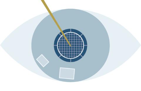 レーザー白内障手術のプロセスのSTEP4水晶体の固い芯の破砕(核分割)