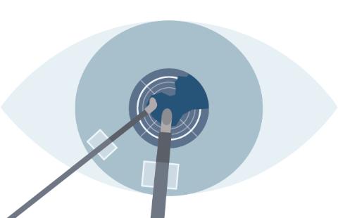 レーザー白内障手術のプロセスのSTEP5皮質吸引