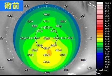 円錐角膜が軽度の術前データ