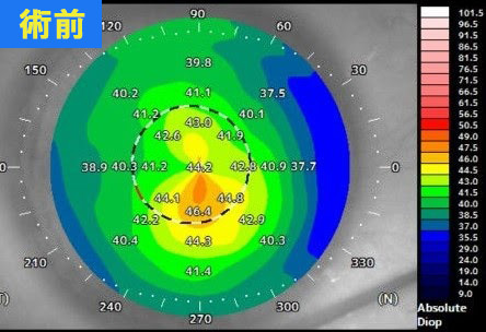 円錐角膜が中等度の術前データ