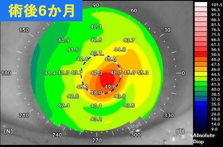 円錐角膜が重度の術後データ