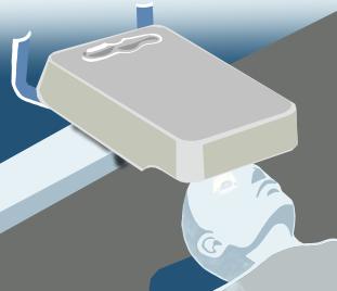 角膜クロスリンキングの手術のプロセス:STEP2の画像