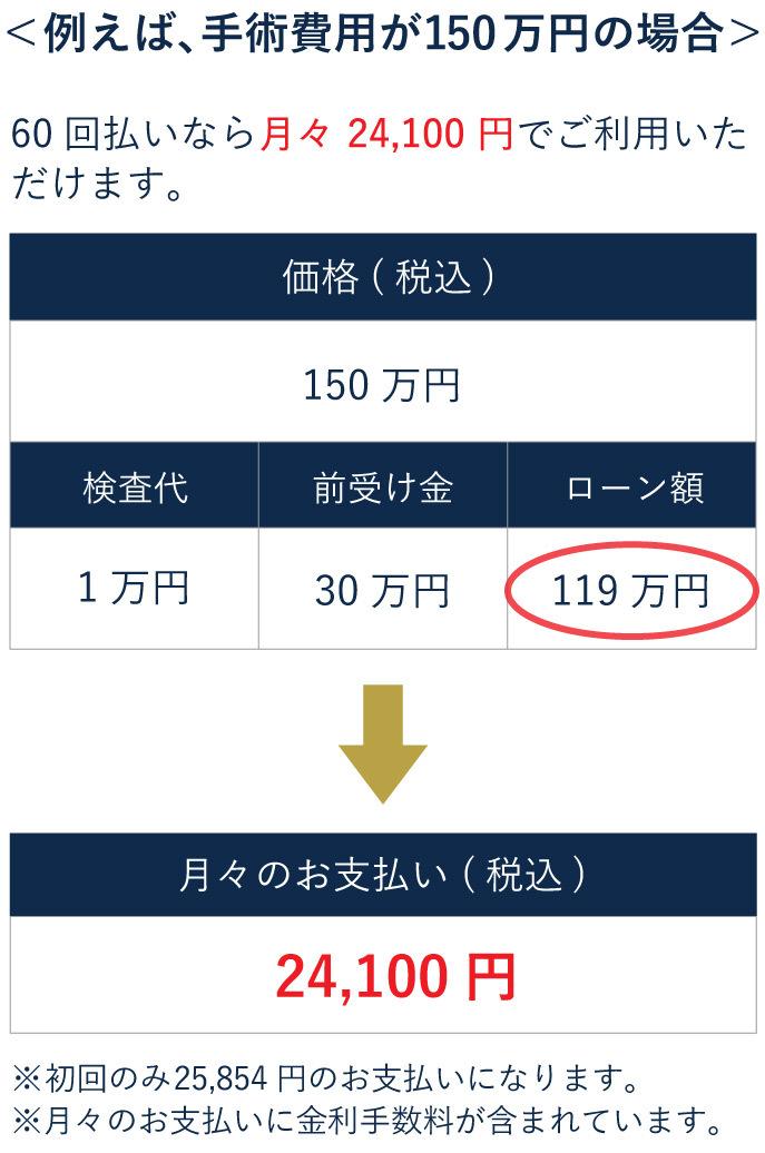 レーザー白内障手術(150万円の場合)の分割価格表