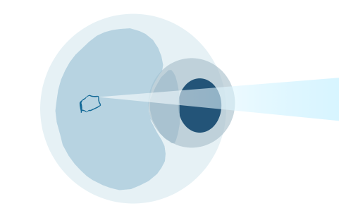 STEP3 特別に設計された顕微鏡を介してレーザー光を照射します