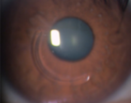 手術後の眼球